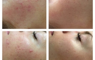 Microneedling acne breakouts before and after