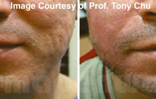 Microneedling acne scarring before and after